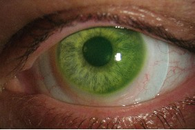 scleral-lens-on-keratoconus